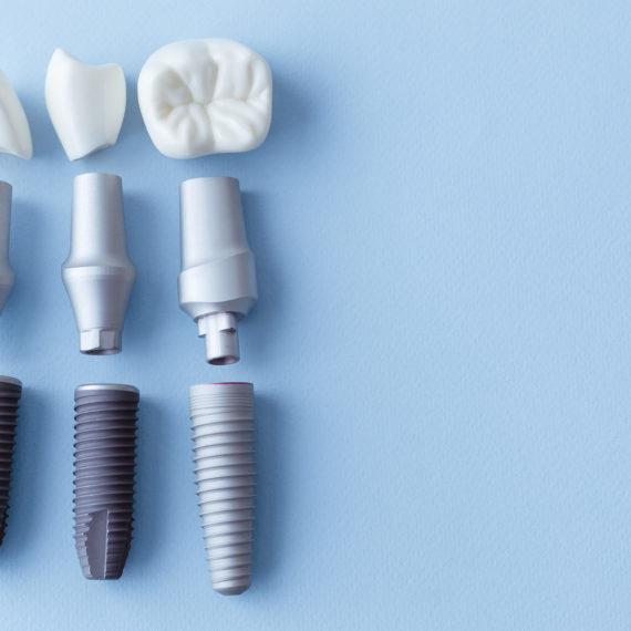 Zahnimplantat München